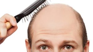 best Hair Loss & Alopecia
