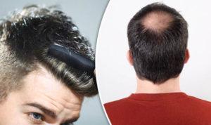 Hair Loss & Alopecia