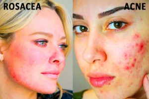 Homeopathic Medicine For Allergy Skin